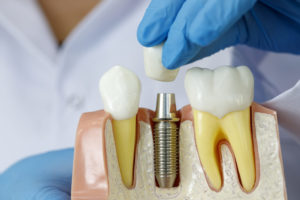 Dental Implant Treatment- Factors That Affect Its Success For Practitioners
